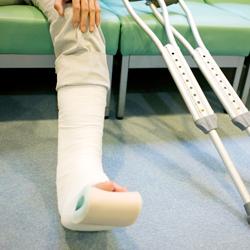 骨折してギプスを巻かれた左足